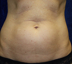 Body Procedures - Liposuction - Patient 1 Before